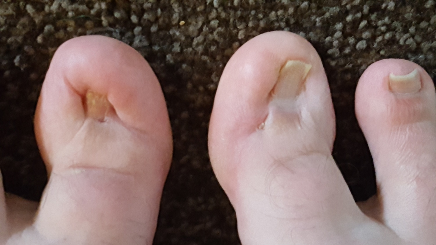 ingrown toenail post surgery